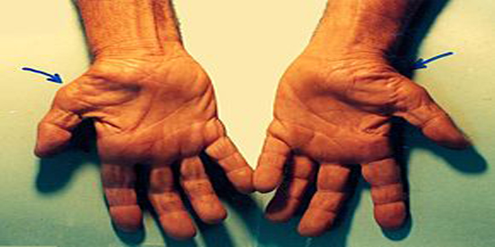 Physiotherapy for carpel tunnel disease
