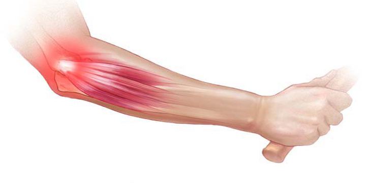 Treatment for tennis elbow