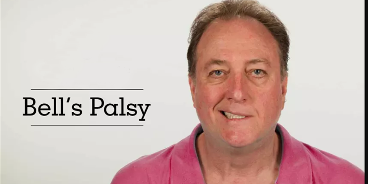 Physiotherapy treatment for bells palsy
