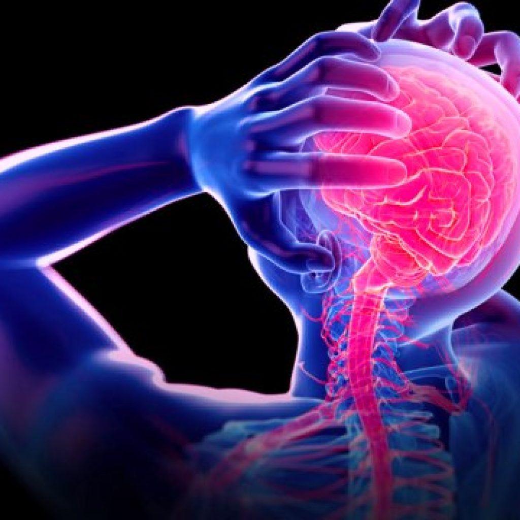 Migraine a bad headache