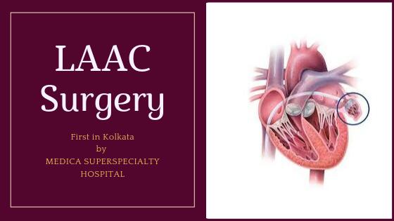LAAC surgery kolkata