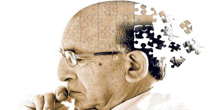Stroke causes dementia